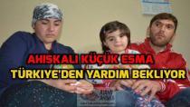 Ahıskalı Küçük Esma Türkiye'den yardım bekliyor